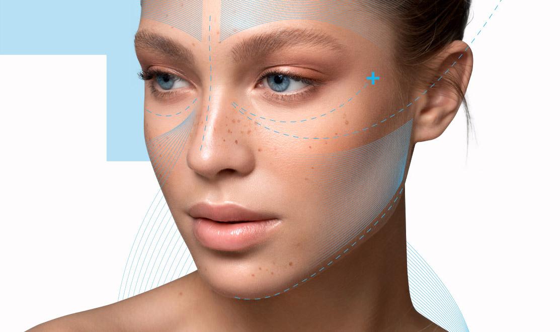 Lifting e minilifting del viso | Intervento viso e collo